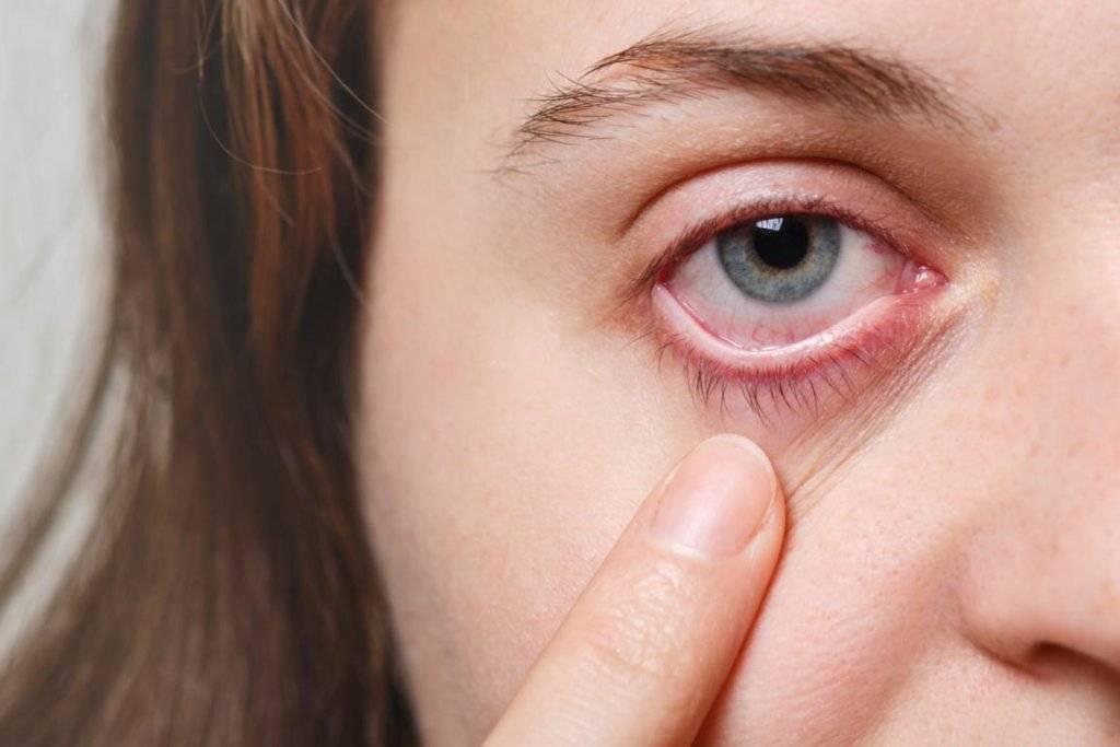 Что делать если глаз красный и болит от линз
