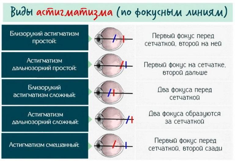 Сложный астигматизм бывает миопическим и гиперметропическим, что это за нарушение рефракции обоих глаз, его лечение и коррекция