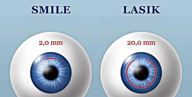 Relex smile или femto lasik: что лучше, отличия операций, что выбрать для восстановления зрения