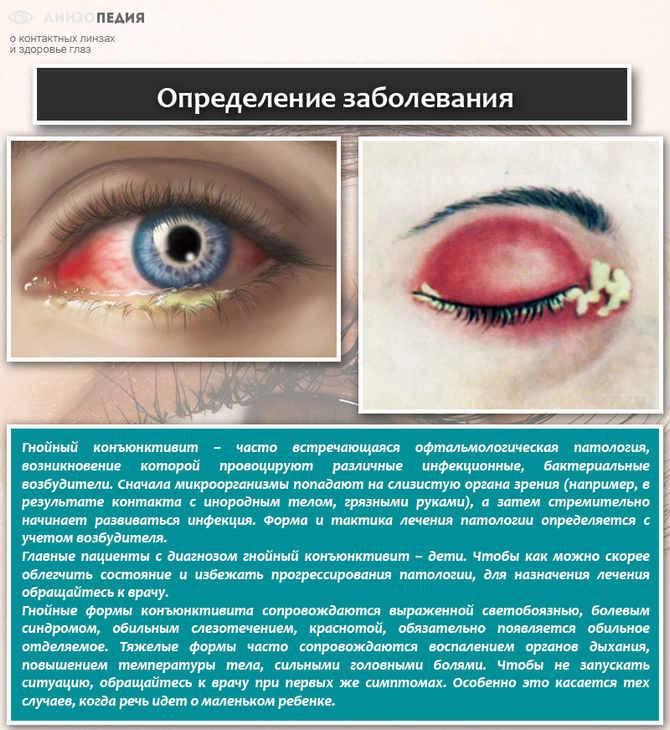 Заразен ли конъюнктивит у детей или нет, сколько дней длится у ребенка, как передается глазная болезнь другим