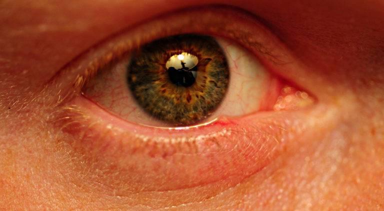 Пузырьки на веках глаза