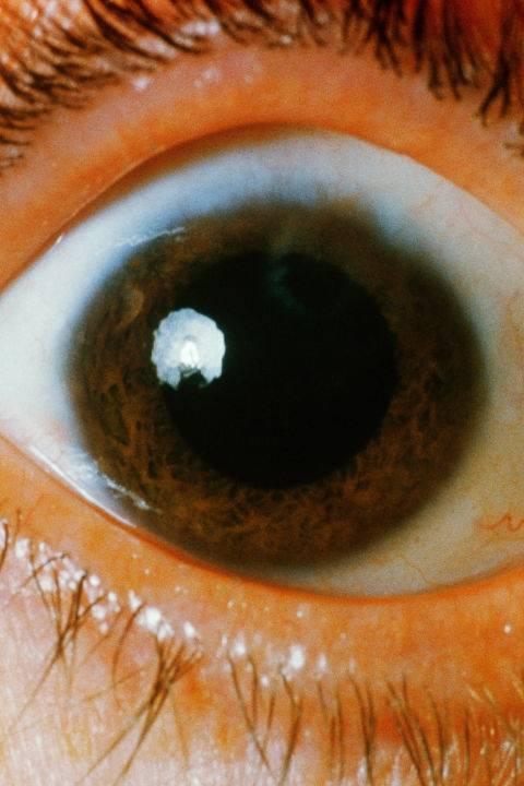 Красное пятно на белке глаза - что это, причины и лечение