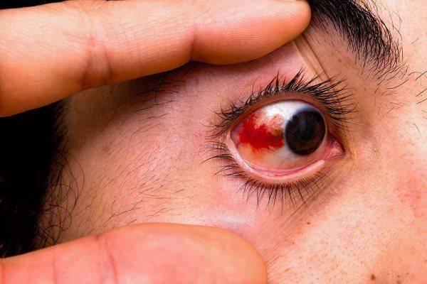 Причины кровоизлияние в склеру глаза