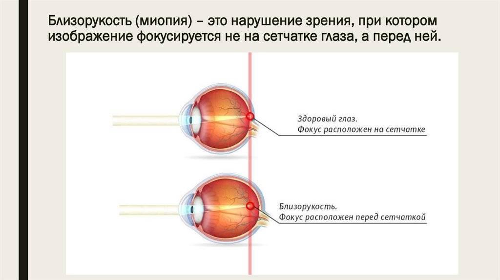 """Ложная близорукость: как лечить - """"здоровое око"""""""