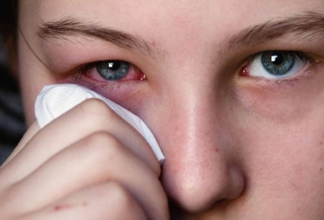 Простуда глаза: понятие, симптомы, лечение.