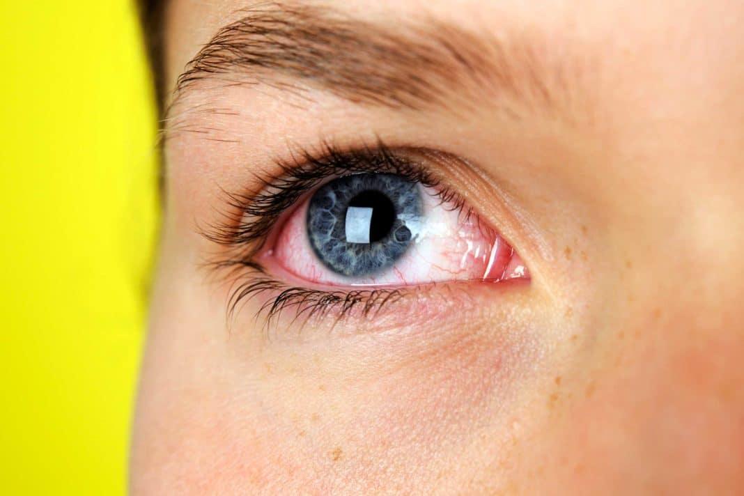 Красные круги под глазами у ребенка: что это, причины почему появляется краснота и пятна, комаровский - что делать