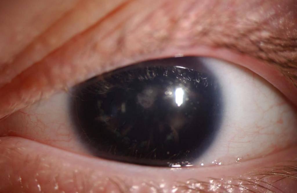 Ирит глаза: симптомы, лечение, причины, осложнения и профилактика