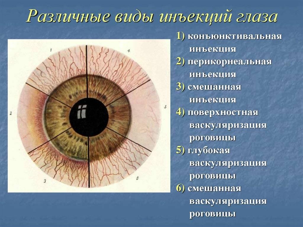 Что такое склерит глаза: виды, причины, симптомы и способы терапии