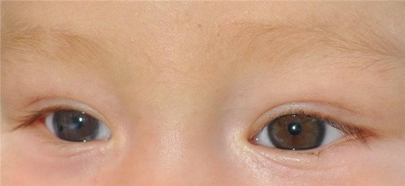 Катаракта у детей — подробности, лечение, симптомы