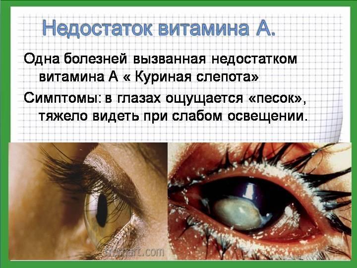 Куриная слепота - симптомы, лечение, причины болезни, первые признаки