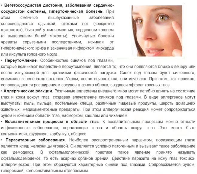 Все способы быстро убрать синяк под глазом от удара oculistic.ru все способы быстро убрать синяк под глазом от удара
