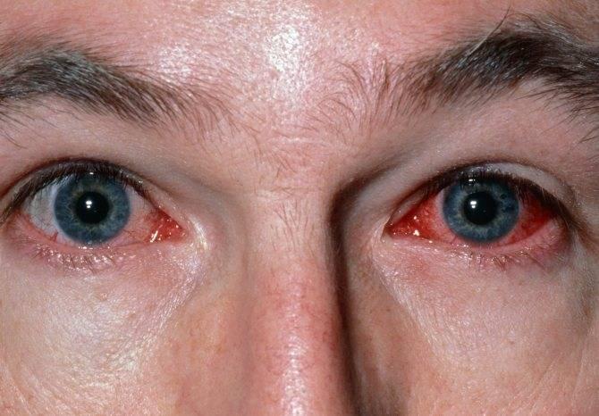 Светобоязнь у детей при каких заболеваниях глаз - причины у ребенка