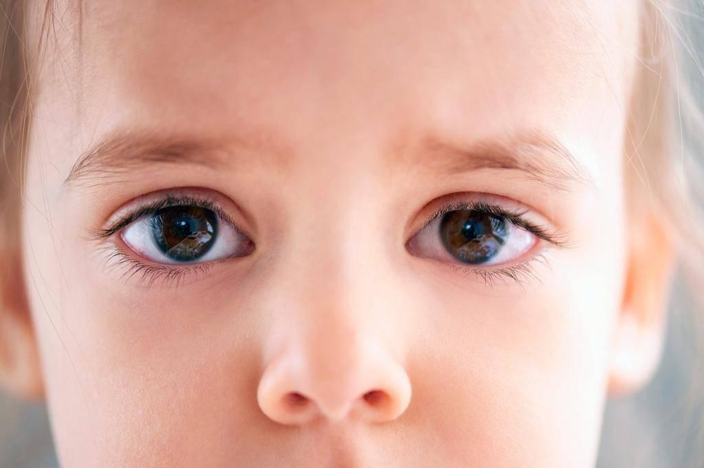 У ребенка расширены зрачки: причины, симптомы и лечение