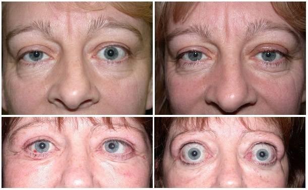 Что такое эпиретинальный фиброз глаз