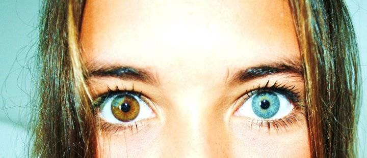 Центральная гетерохромия (два разных цвета глаз): причины и виды