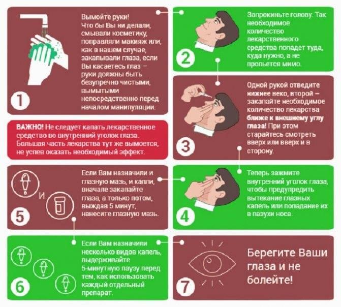 Как правильно закапывать капли в глаза: алгоритм и техника закапывания глазных капель