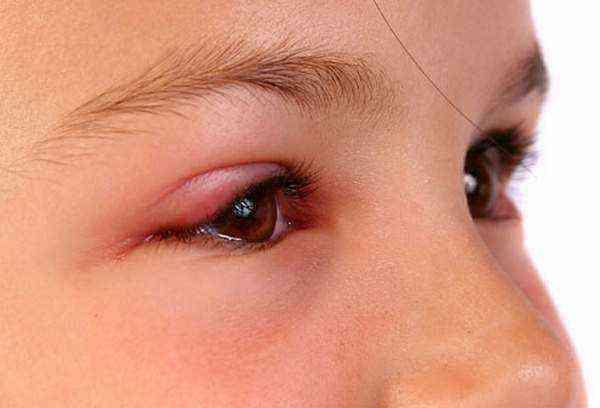 Как лечить халязион верхнего века у ребенка: можно ли обойтись без операции?