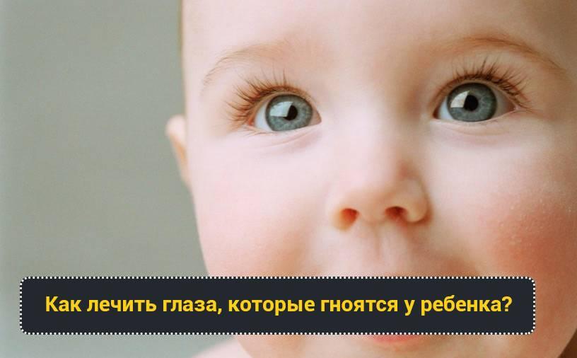 У ребенка гноятся глаза и насморк - причины, лечение