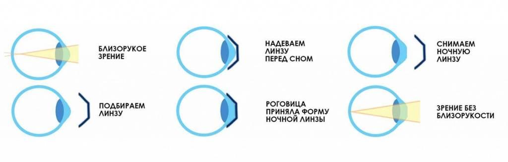 Мультифокальные контактные линзы, как метод торможения прогрессирования близорукости