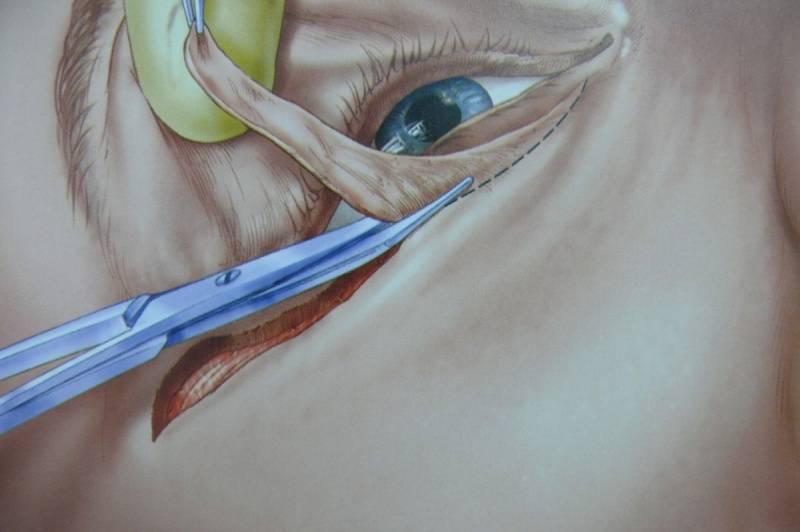 Грыжи под глазами: как избавиться без операции, способы удаления и рекомендации