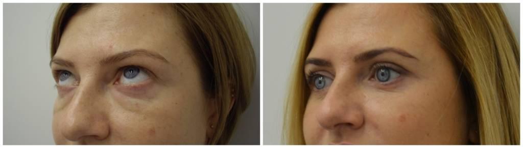 После блефаропластики лазерная шлифовка кожи у глаз, микротоки для век, дарсонваль, а также когда можно краситься и делать процедуру ботокс, как заниматься спортом?