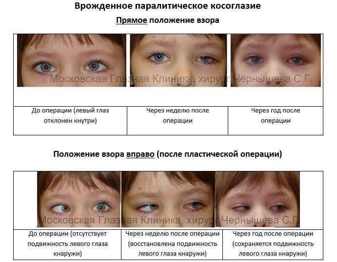 Виды лечения косоглазия и особенности проявления патологии у взрослых
