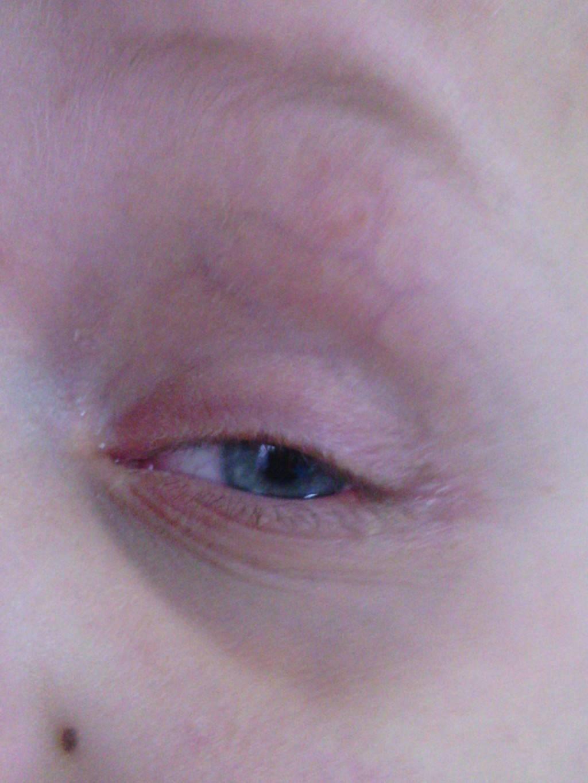 Шелушится кожа вокруг глаз у ребенка и взрослого: лечение