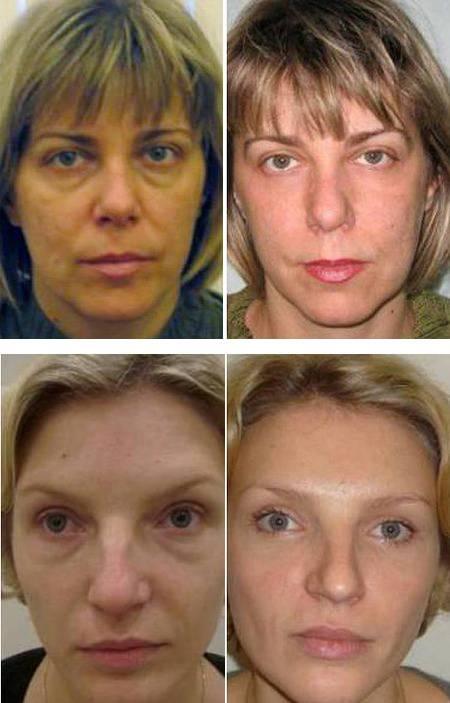 Грыжа нижнего века: лечение нижнего без операции, удаление на глазах