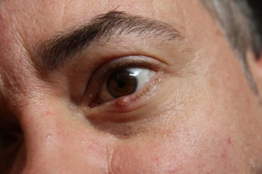Чирей на глазу у ребенка, взрослого: причина появления, чем и как лечить в домашних условиях