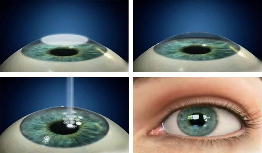 Ограничения после лазерной коррекции зрения - что нельзя делать