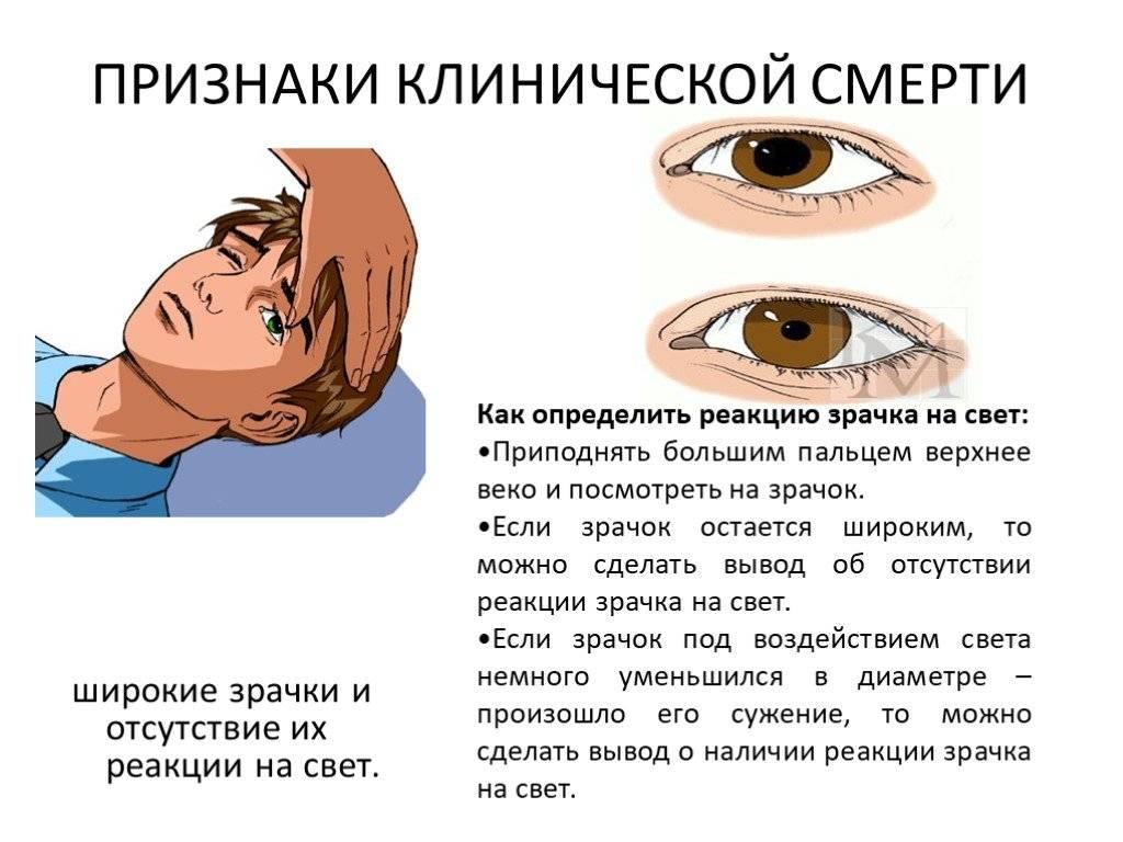 Нарушение зрачковых реакций   компетентно о здоровье на ilive