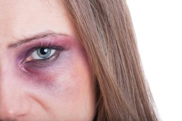 Полезные советы: как избавиться от синяков под глазами от удара быстро и эффективно