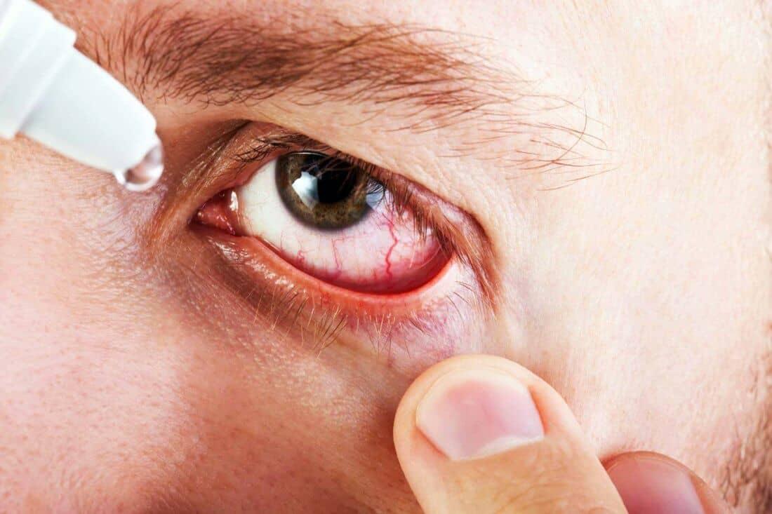 Лечение и причины глазного кровоизлияния