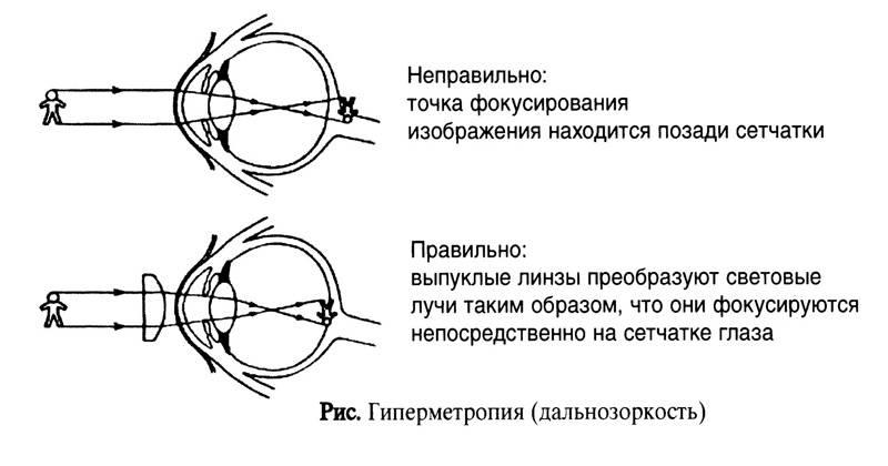 Дальнозоркость (гипермиотропия)