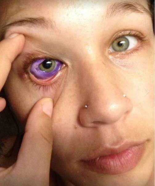 Голубые склеры, особенности возникновения и диагностика заболевания.