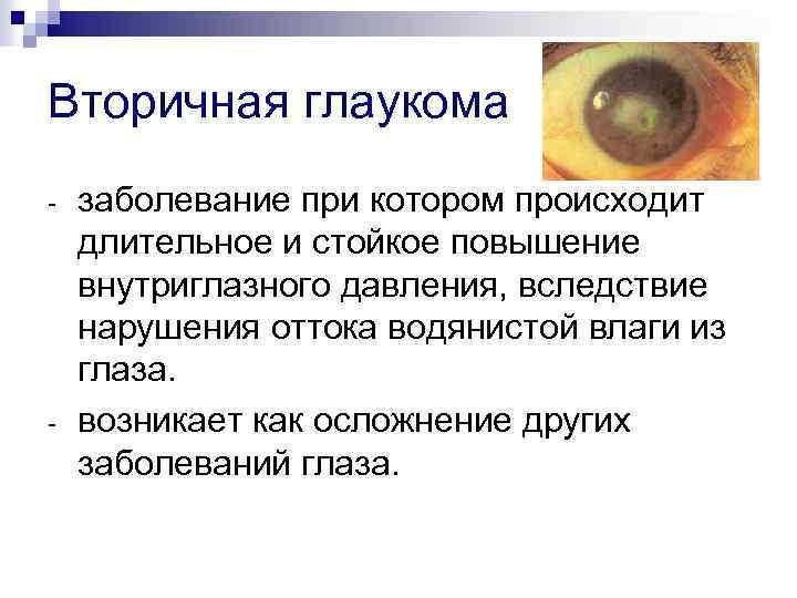 Глаукома - что это? симптомы, лечение, причины и профилактика
