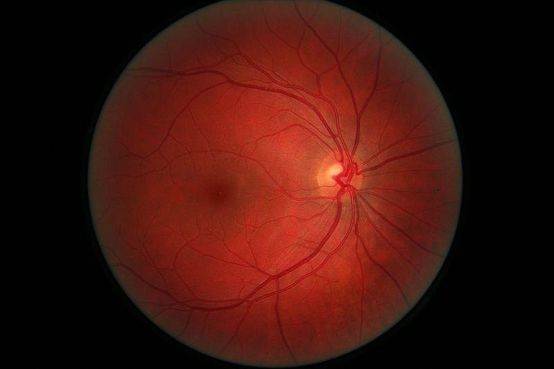 Амавроз лебера (пигментный ретинит): симптомы и лечение