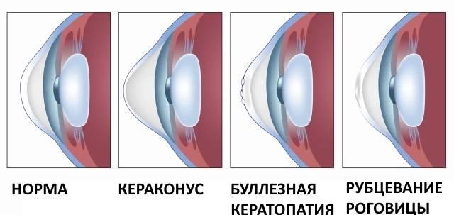 Заболевание глаз – кератоконус. в чем его опасность?