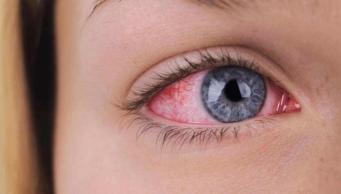Причины красных глаз после сна. почему краснеют глаза утром после сна и как с этим бороться? просыпаюсь с красными глазами