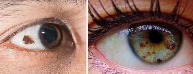 """Невус (родинка) на глазу: причины появления, симптомы, методы лечения - """"здоровое око"""""""