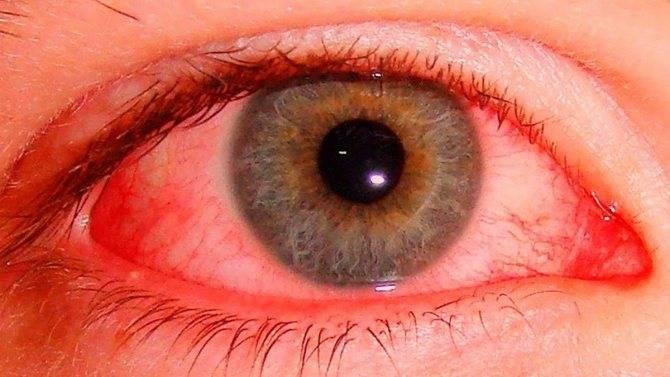 Как избавиться от красноты глаз в домашних условиях: что делать, если красные органы зрения слезятся, как лечить, у взрослого