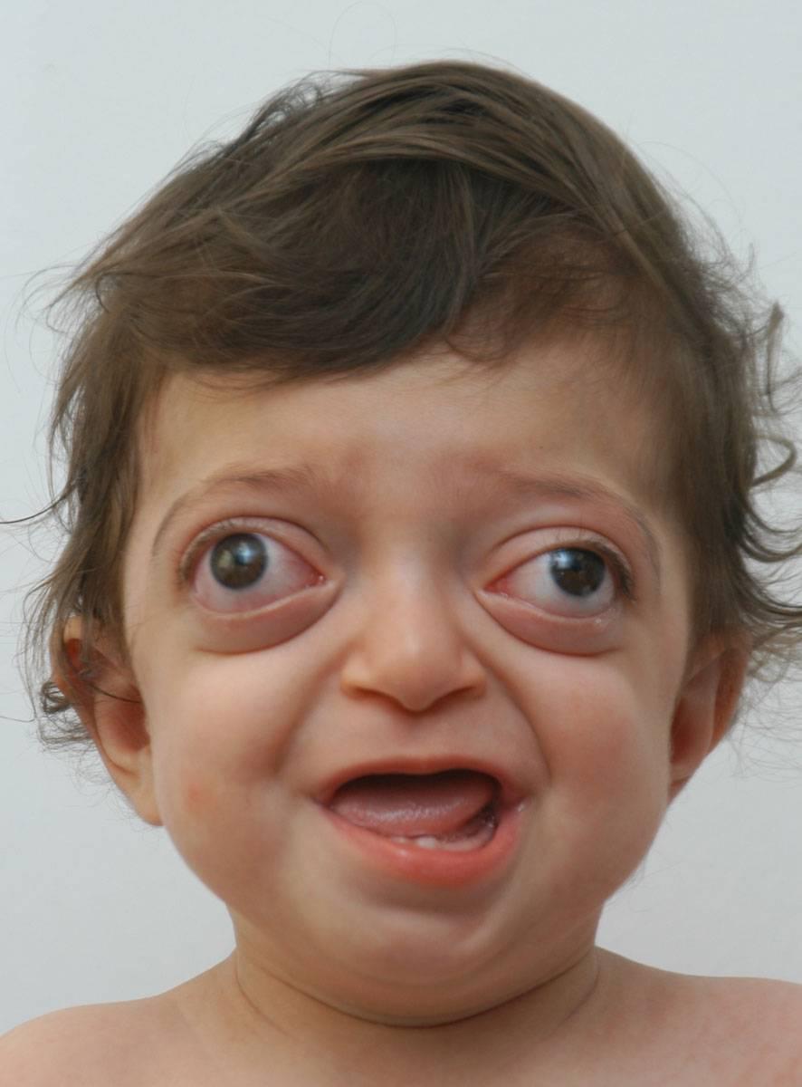 Увеличение глаза и пучеглазость — экзофтальм