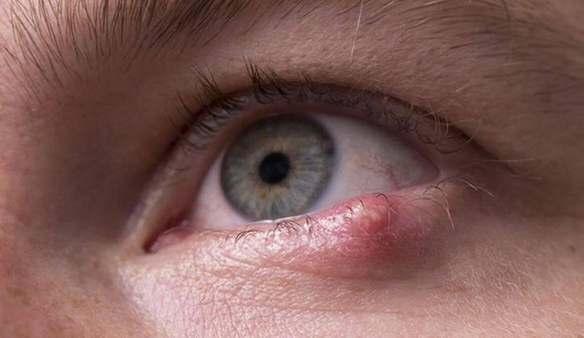 """Мейбомит: симптомы, причины болезни и методы лечения - """"здоровое око"""""""