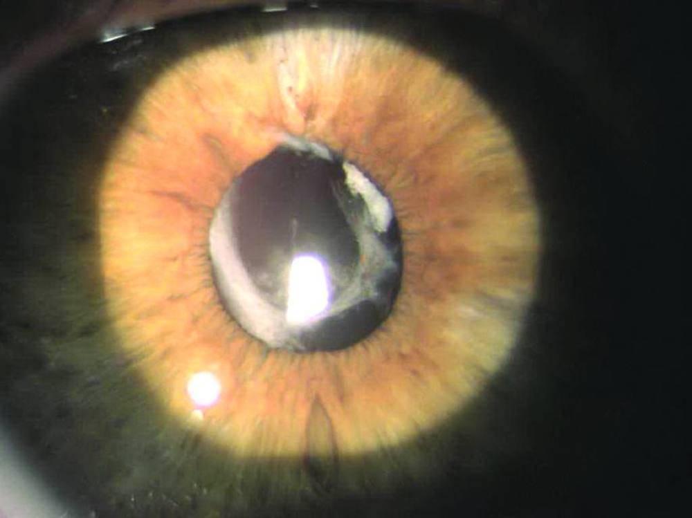Лазерная дисцизия задней капсулы хрусталика при вторичной катаракте