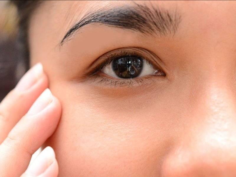 Как убрать опухоль с глаз: самые эффективные методы и рекомендации