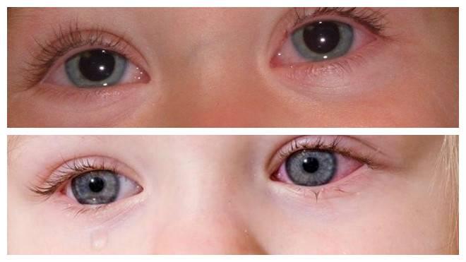 У ребенка красные сосуды в глазах и белки – причины