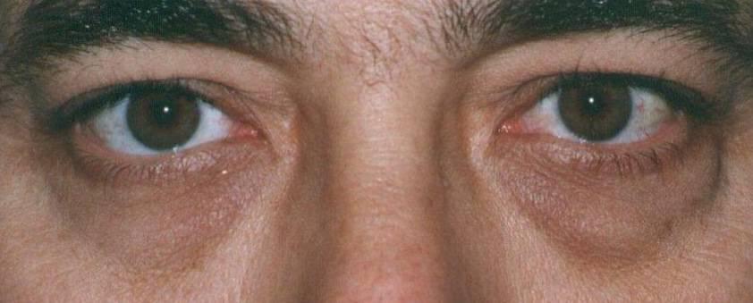 Синева под глазами причины. темные круги под глазами у мужчин: причины возникновения   школа красоты