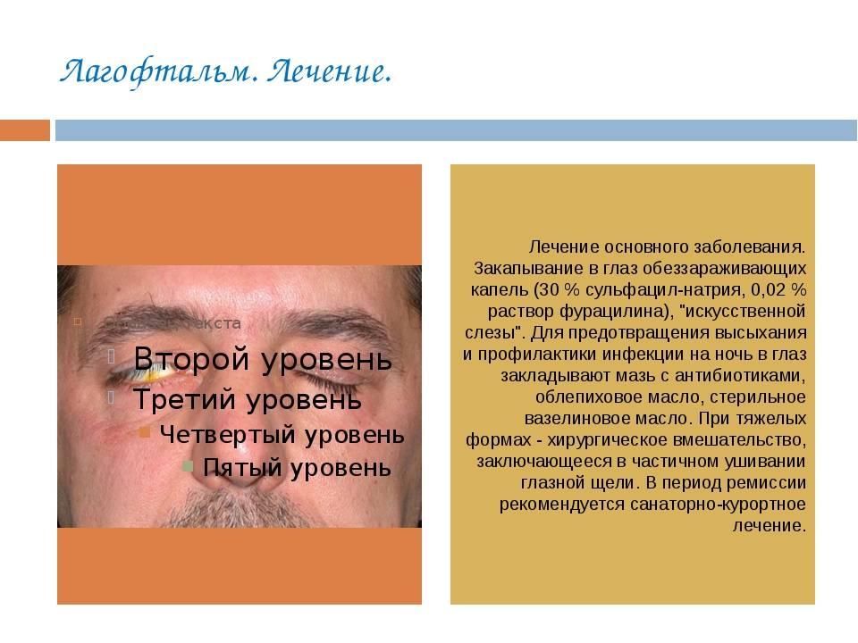 Энофтальм: что это такое, лечение заболевания