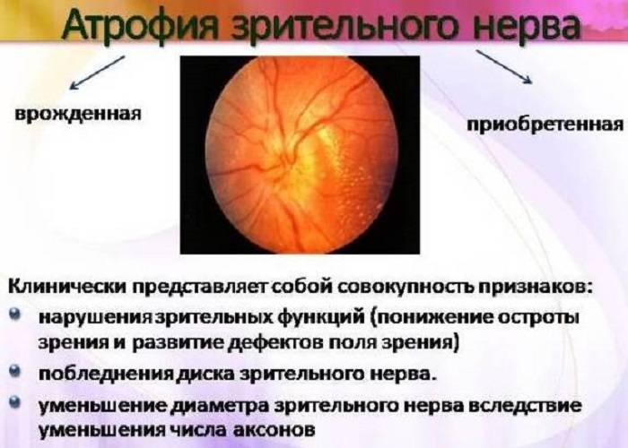 Ретробульбарный неврит (воспаление) зрительного нерва: симптомы и лечение