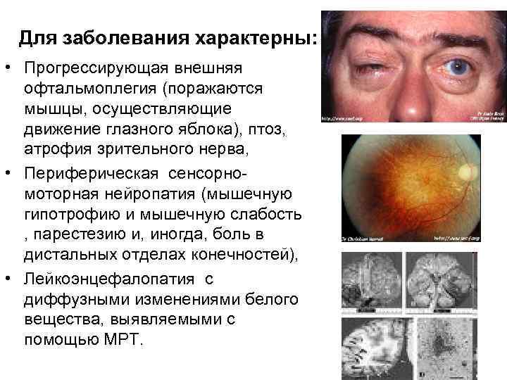 Электроофтальмия